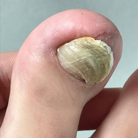 大まかに爪を切った